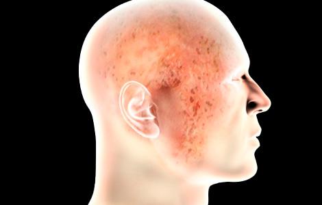 Микробная экзема фото лечение причины Как лечить