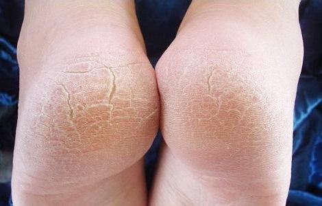 Причины развития псориаза на ногах